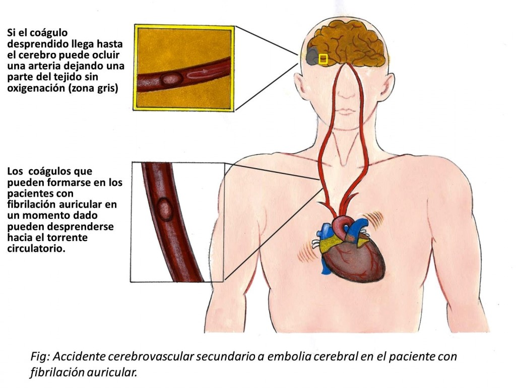 Accidente cerebrovascular en la FA