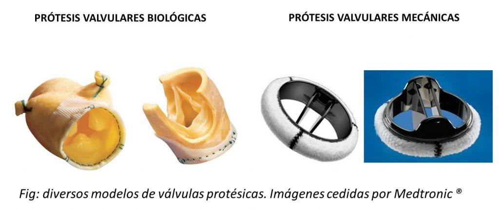 PRÓTESIS VALVULARES