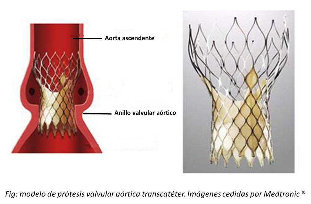 Prótesis transcatéter
