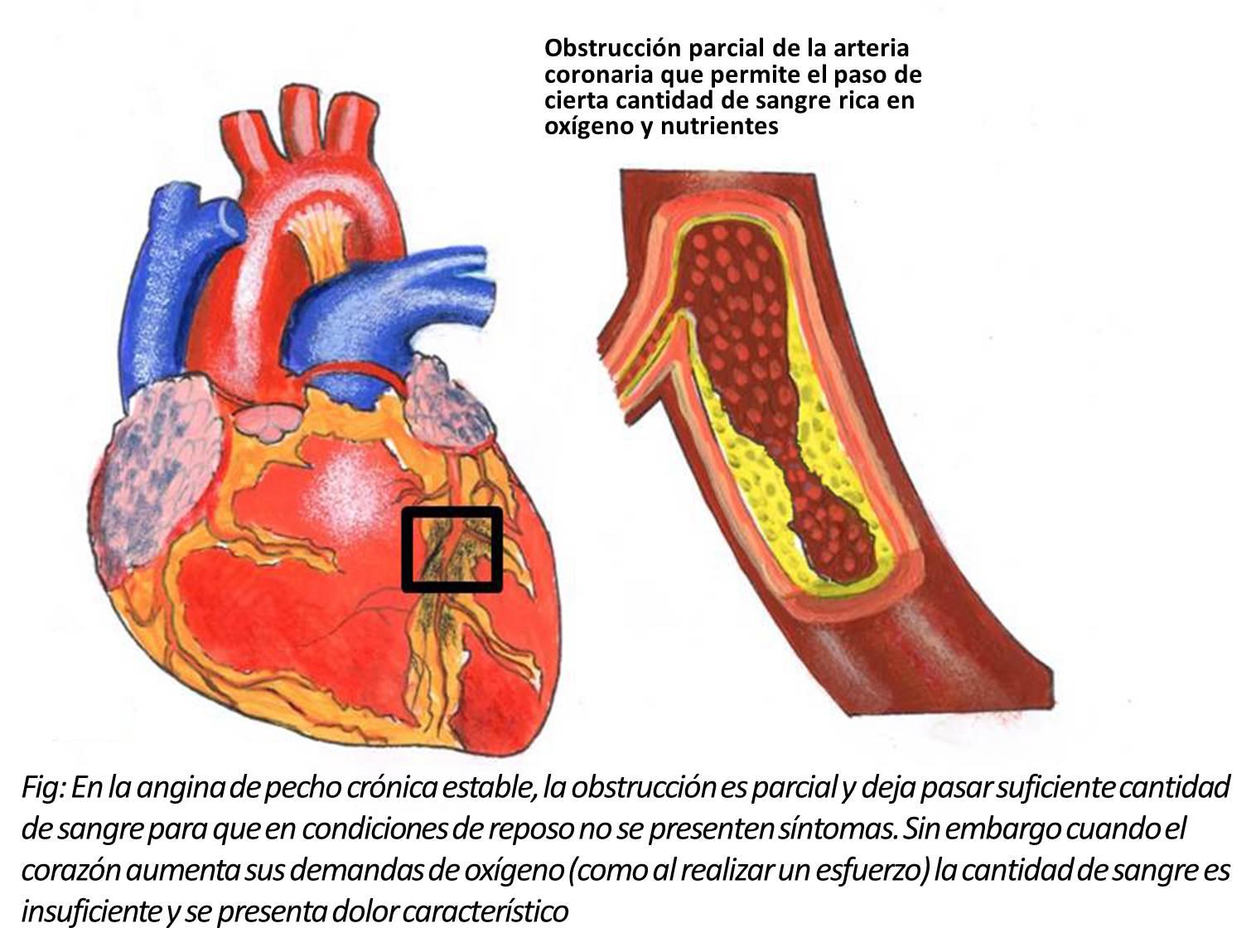 angina de pecho ii