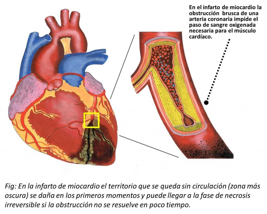 Bonito Anatomía Infarto De Miocardio Composición - Anatomía de Las ...