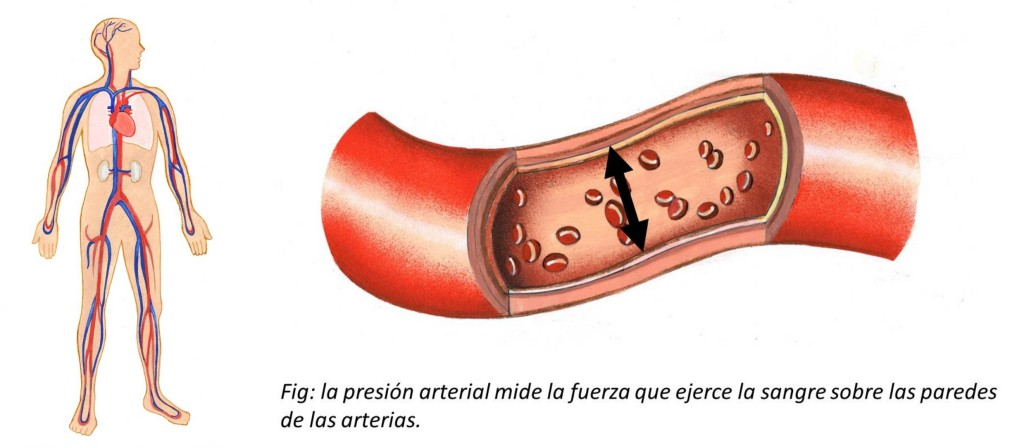 De hipertension arterial la es causa la cual