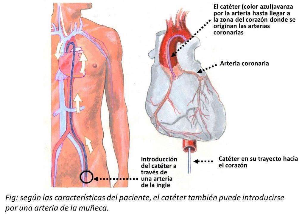 En que consiste un cateterismo