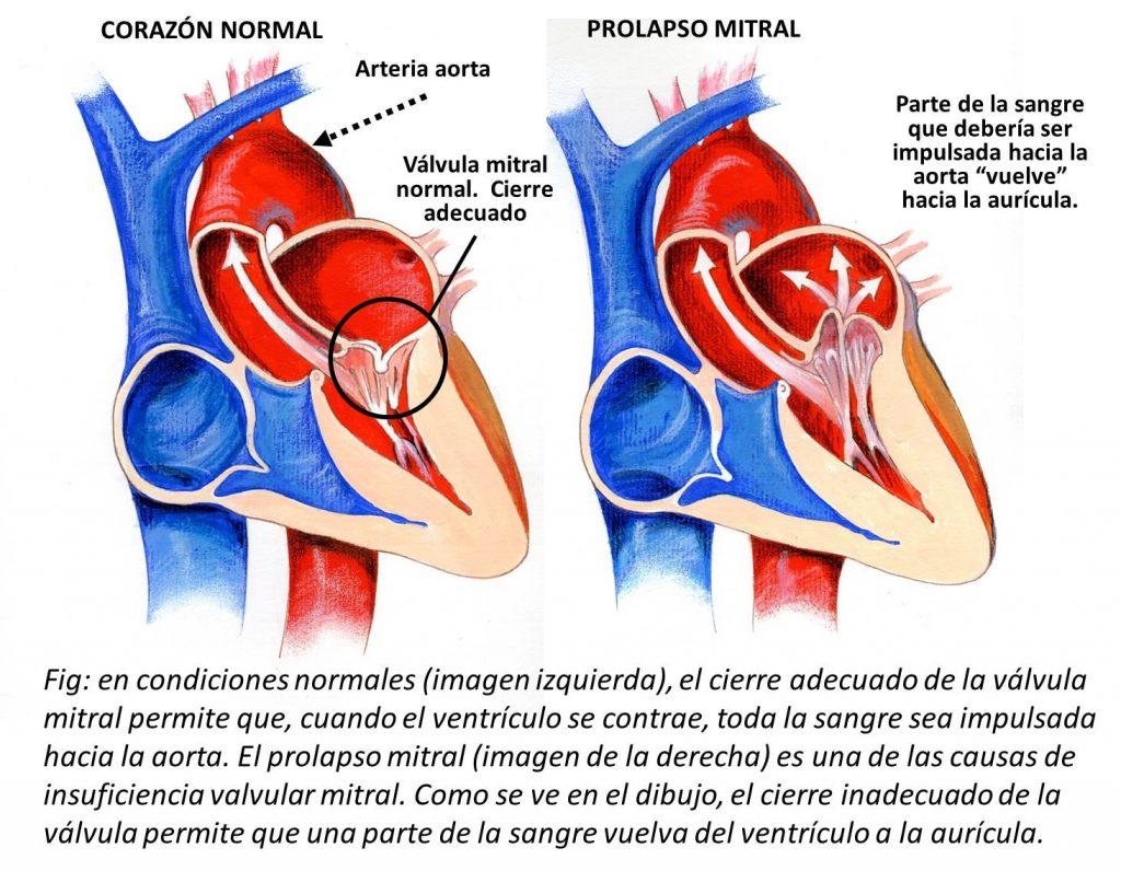 tratamiento para el prolapso de la valvula mitral